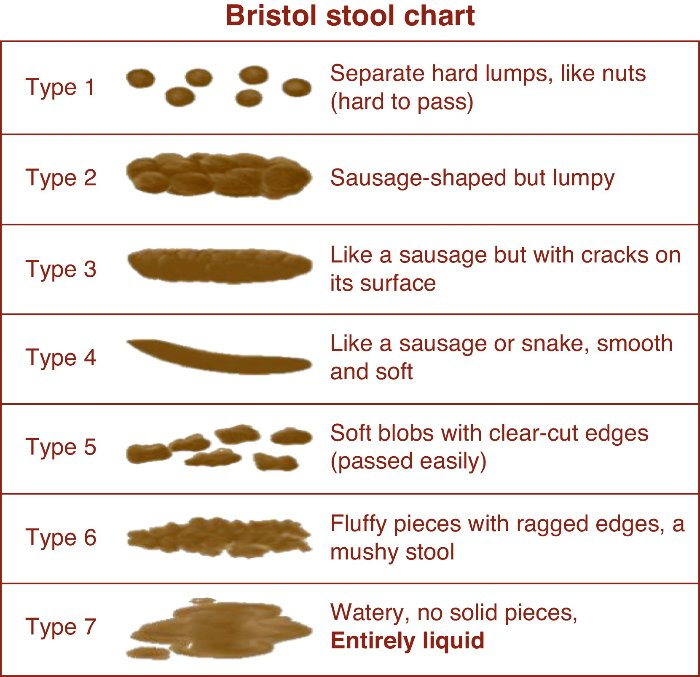 bristol stool chart with 7 types - images and descriptions